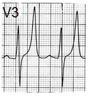 ECG tall narrow symmetrically peaked T wave as Eiffel tower, hyperkalaemia, hyperkalemia