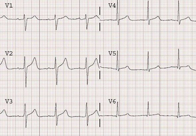 ECG normal T wave after ischaemia with sinus rhythm