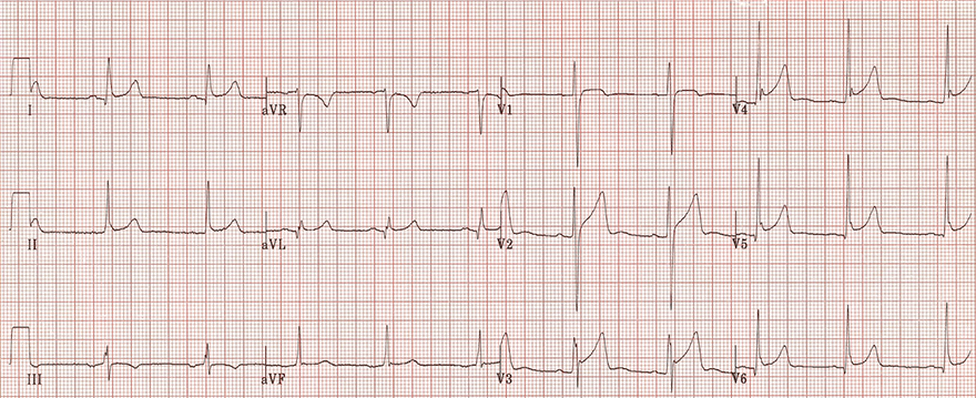 ECG tall t waves and benign early repolarisation, fish hook patter