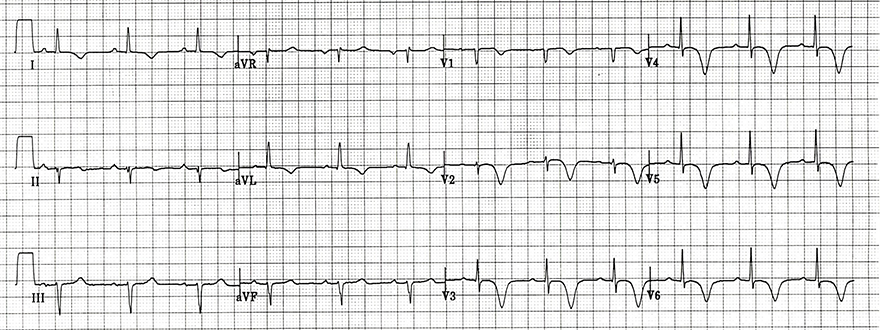 ECG inverted T wave and wellens syndrome type I