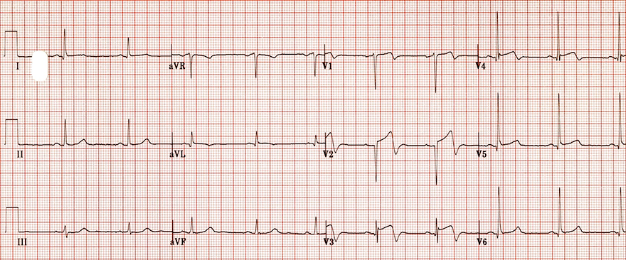 ECG biphasic terminal negative T waves and Wellens syndrome type II