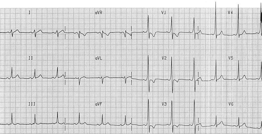 ECG inverted T wave and WPW syndrome type A - left-sided accessory pathway (Bundle of Kent)