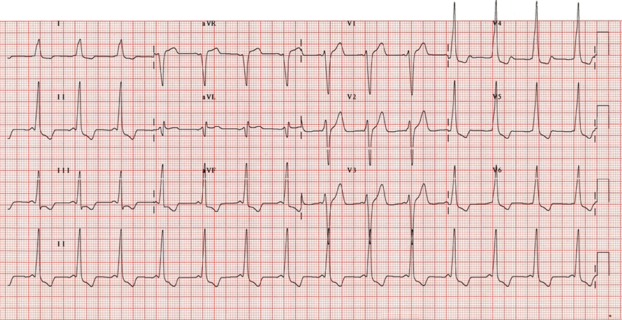 ECG inverted T wave and WPW syndrome type B - right-sided accessory pathway (Bundle of Kent)