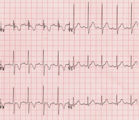 ECG paediatric inverted T waves in 2yr old children boy