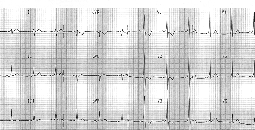 ECG wpw syndrome type A, delta wave, left accessory pathway