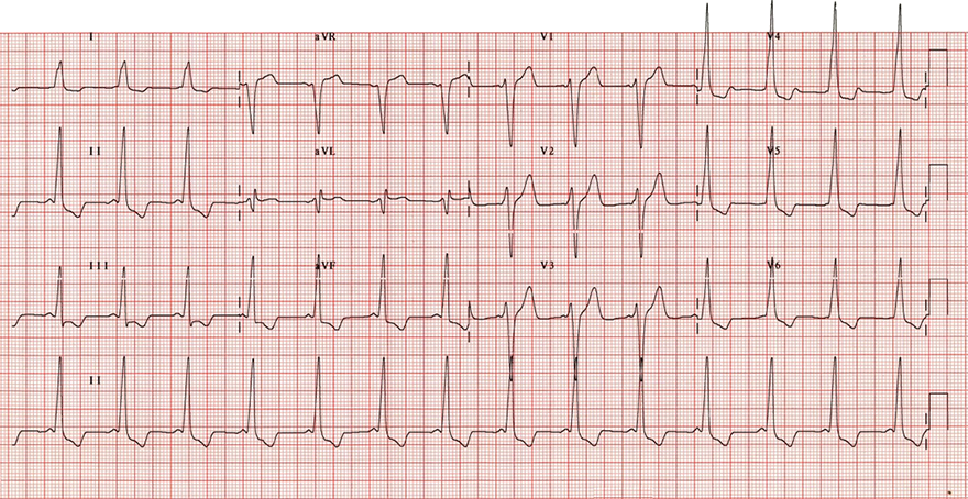 ECG wpw syndrome type B, delta wave, accessory pathway bundel of kent, right side