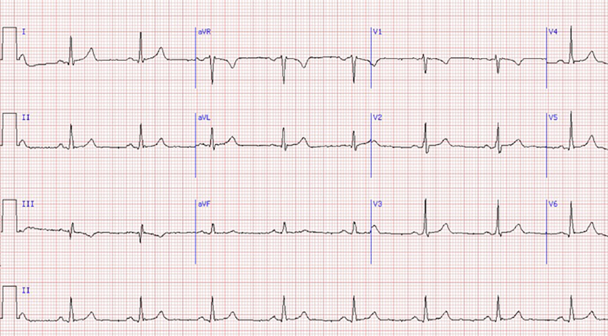 ECG sinus rhythm, P wave morphology and axis (upright in I and II, inverted in aVR), Narrow QRS complexes, constant PR interval, regular rhythm
