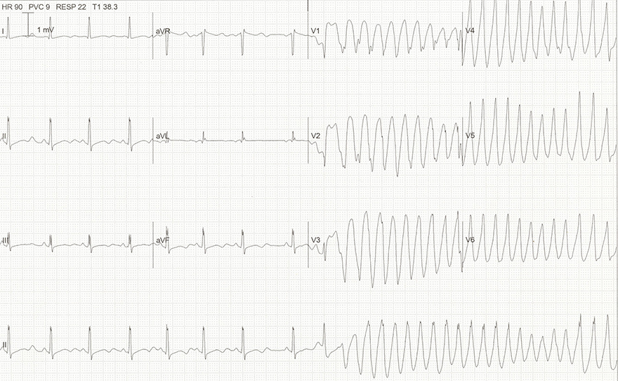 ECG hypomagnesaemia, hypokalemia, long QT interval, U wave, r on t phanomenon, Torsades de Pointes (TdP)