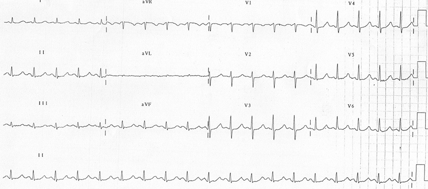 ECG hypomagnesaemia 0,66mmmol/l, sinus tachycardia, prolonged QT interval