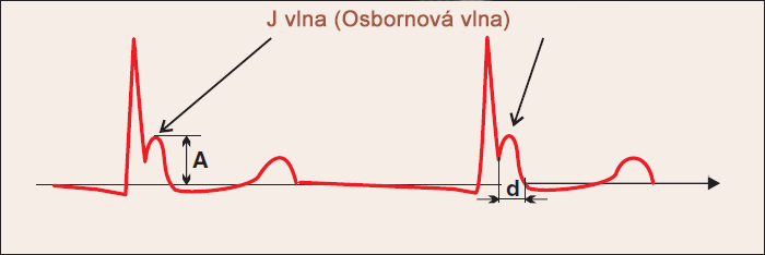 Hypothermia, ECG J wave, Osborn wave duration and amplitude