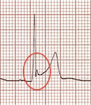 ECG benign early repolarization and J, Osborn wave