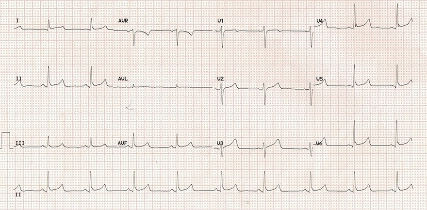 ECG benign early repolarisation, hathook junction, J wave, late delta wave