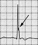 ECG hypercalcaemia and J wave as notch