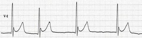 ECG hypothermia and J wave, osborn wave 30 celsius
