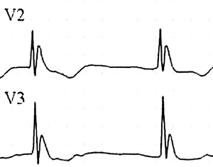 ECG J (Osborn) wave and hypothermia