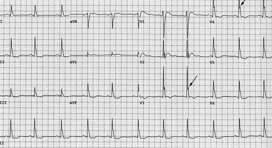 ECG J wave - notch, and hypercalcaemia