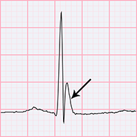 ECG J wave, Osborn wave, camel-hump sign, late delta wave, hathook junction, hypothermic wave, K wave, H wave or current of injury