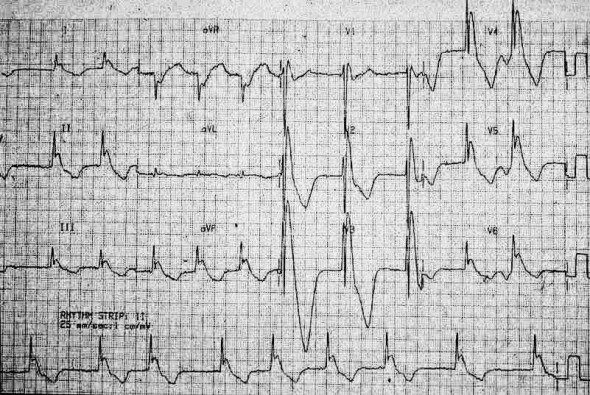 ECG hypothermia giant Osborn waves, atrial fibrillation, prolonged QT interval