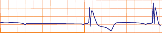 ECG hypothermia temperature 32 degrees and Osborn J wave
