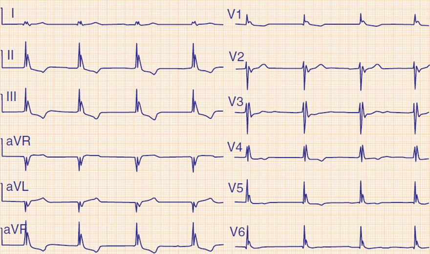 ECG hypothermia first degree av block, sinus bradycardia, osborn j waves