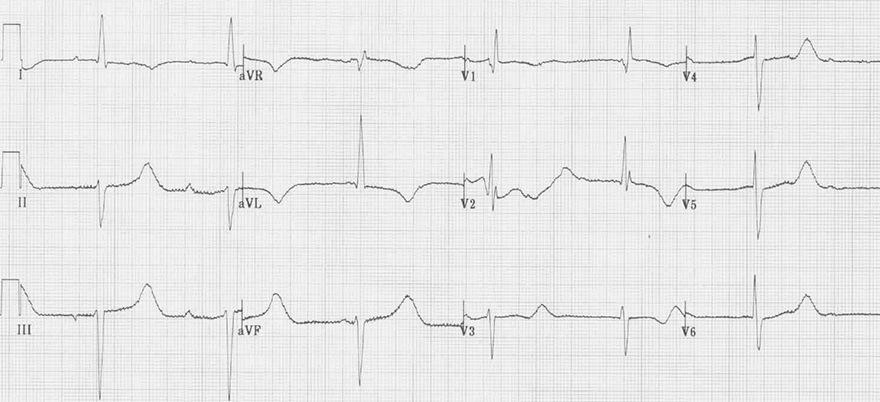 ECG hypothermia, sinus bradycardia, prolonged QT interval, AV block
