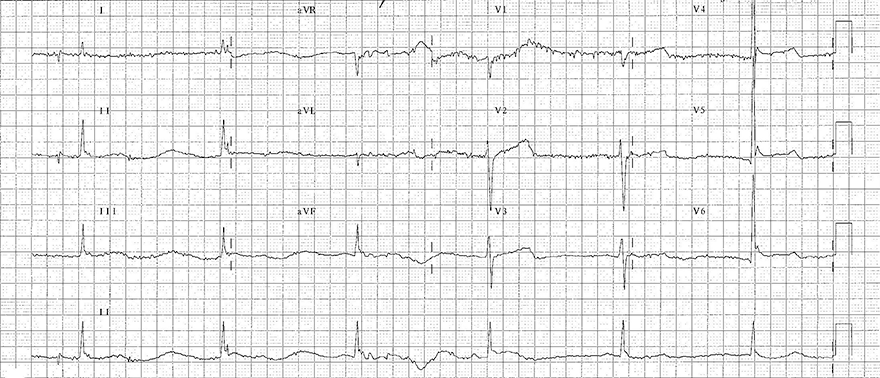 ECG hypothermia, sinus bradycardia, osborn J waves, prolonged QT interval, shivering artefact