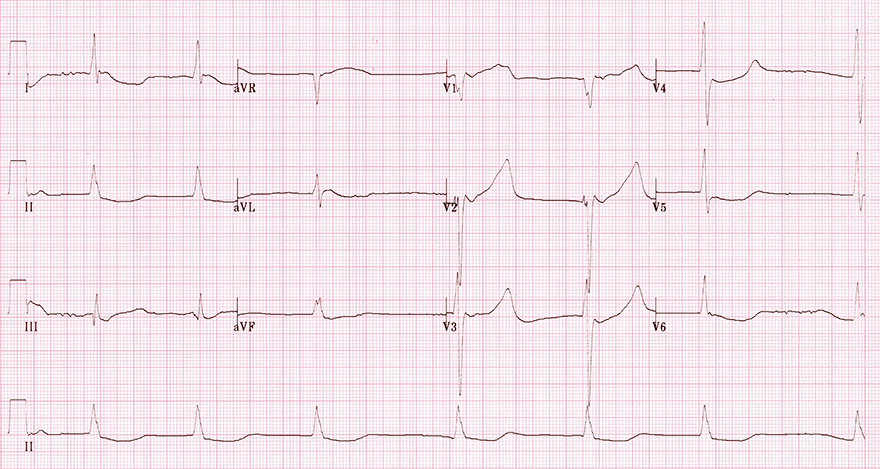ECG hypothermia, atrial fibrillation slow ventricular rate response, prolonged QT interval