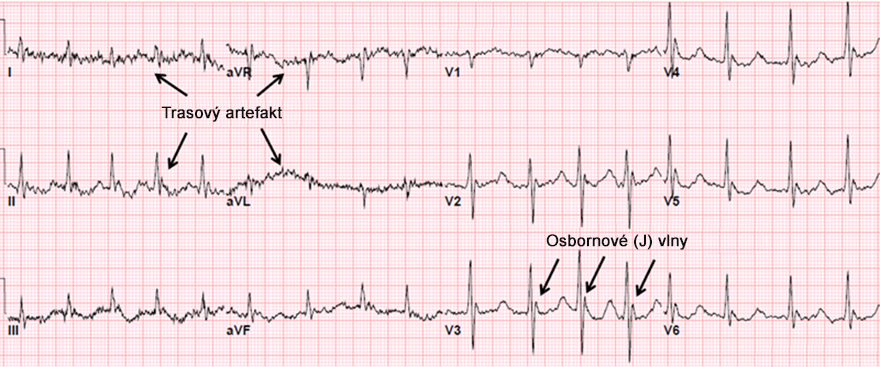 ECG hypothermia, sinus bradycardia, shivering artefact, osborn waves, prolonged QT interval