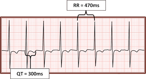 ECG long QT interval, supraventricular tachycardia, corrected QT interval calculation