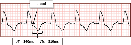 ECG ventricular rhythm, broad QRS, JT interval, and corrected QT interval calculation