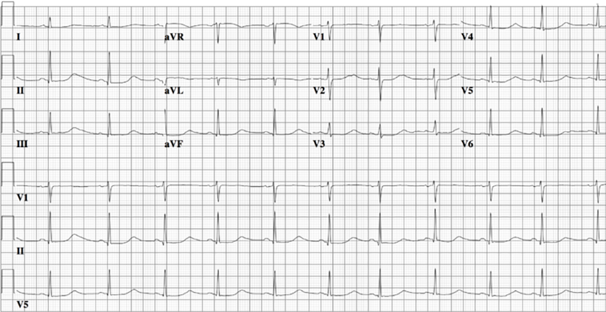 ECG congenital long QT syndrome, LQTS type 1