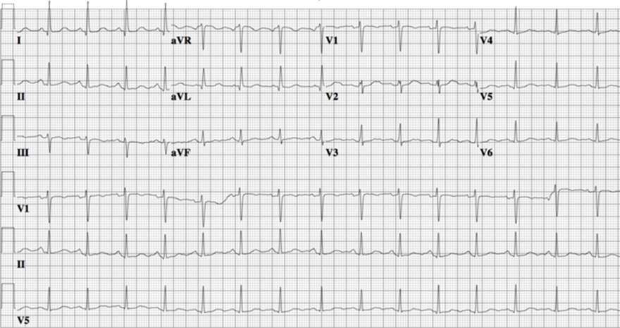 ECG congenital long QT syndrome, LQTS type 2