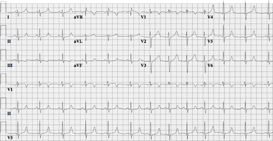 ECG congenital long QT syndrome, LQTS type 3