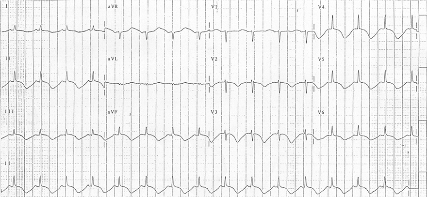 ECG acquired long QT syndrome, cerebral T waves, intracranial pressure, subarachnoid haemorrhage