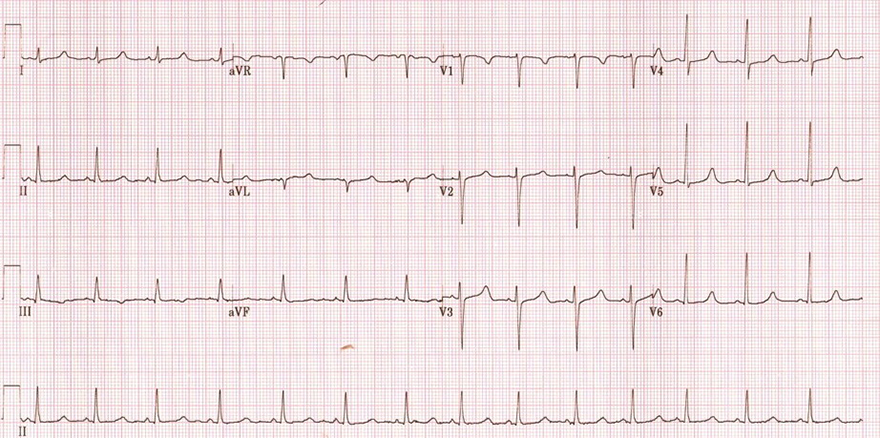 ECG acquired long QT syndrome, hypocalcaemia