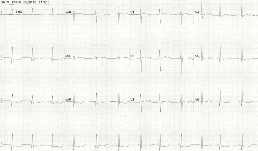 ECG acquired long QT syndrome, hypokalemia