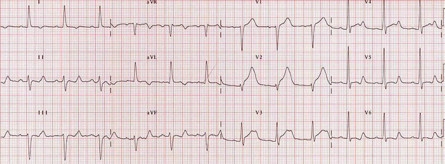ECG antero-septal STEMI, acquired long QT syndrome