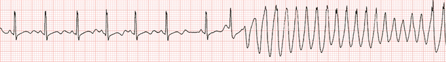 ECG long QT syndrome, venricular arrhythmia Torsades de Pointes