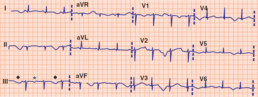 ECG acquired long QT syndrome, T wave alternans