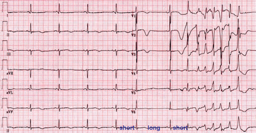 ECG long QT syndrome, Torsades de Pointes, short-long-short RR interval