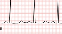ECG Congenital (acquired) long QT syndrome (LQTS)