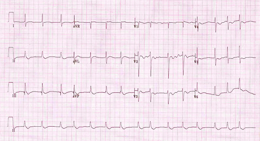 ECG atrial tachy-fibrillation and digoxin effect