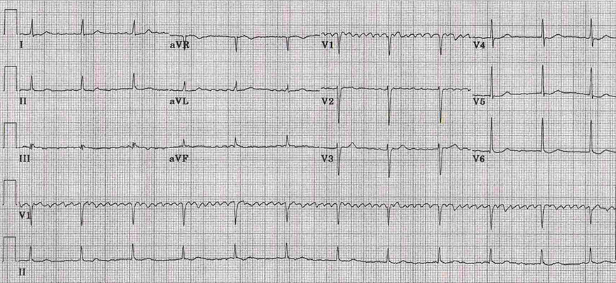 ECG digoxin toxicity, coarse regularised atrial fibrillation, Complete (3rd degree) heart block