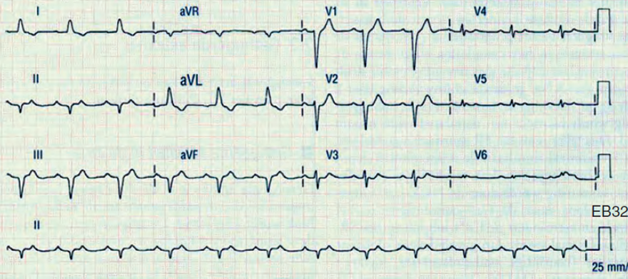 ECG digitalis toxicity, poisoning, focal atrial tachycardia, second AV block, slow ventricular response
