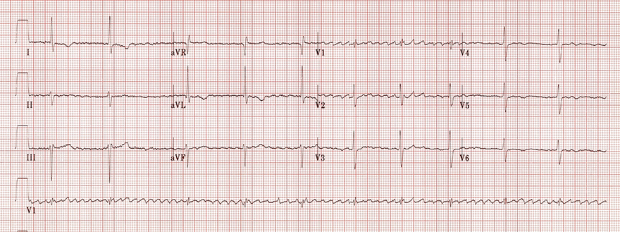ECG Regularised atrial fibrillation, coarse atrial fibrillation, 3rd degree AV block, junctional escape rhythm