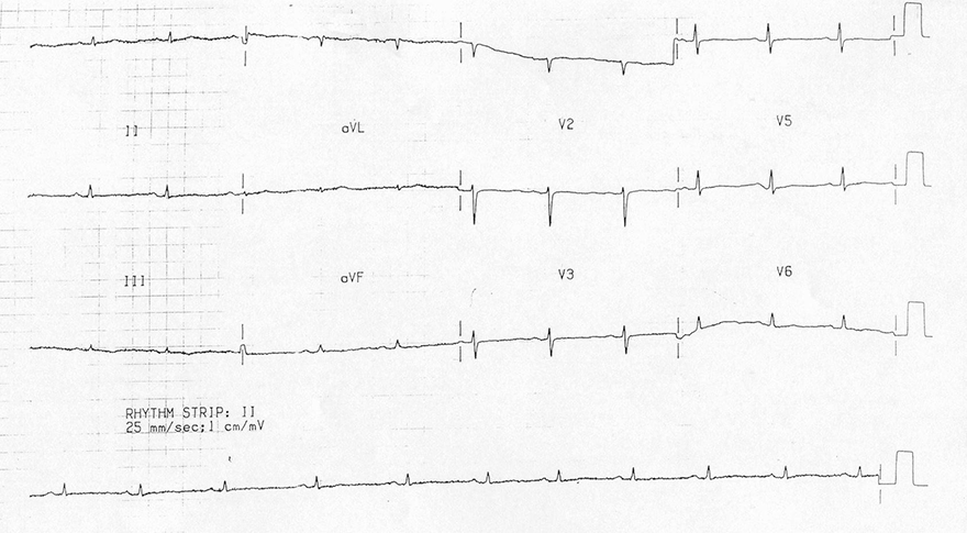 ECG severe hypothyroidism, myxoedema triad: sinus bradycardia, low qrs voltage, flattened T waves