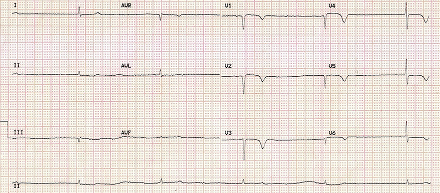 ECG myxoedema coma triad, sinus bradycardia, low QRS voltage, T wave inversion, elevated TSH, low T4