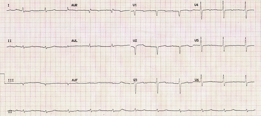 ECG myxoedema coma after treatment, sinus rhythm, normal T waves
