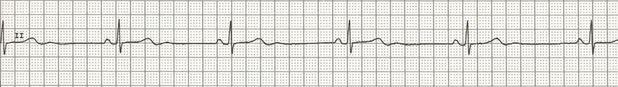 ECG hypothyroidism, sinus bradycardia, low serum fT4, high TSH