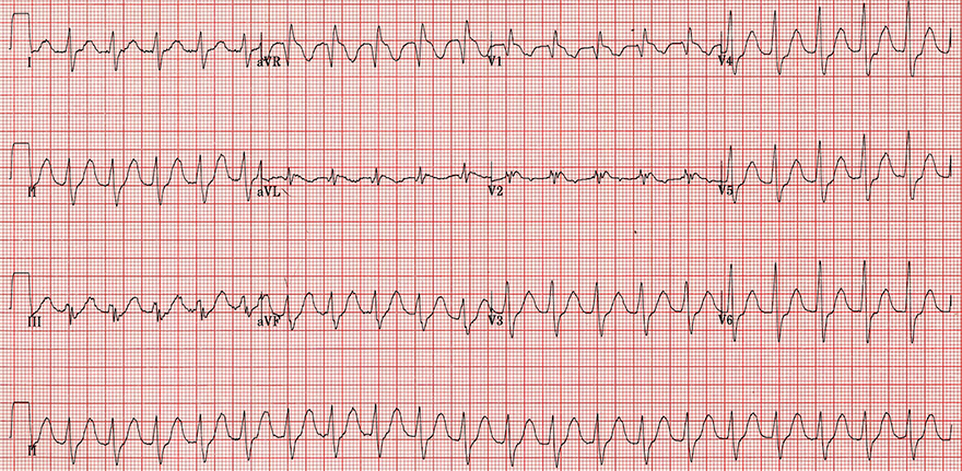 ECG flecainid poisoning, sodium channel blocker toxicity, sinus tachycardia, broad qrs, terminal r aVR
